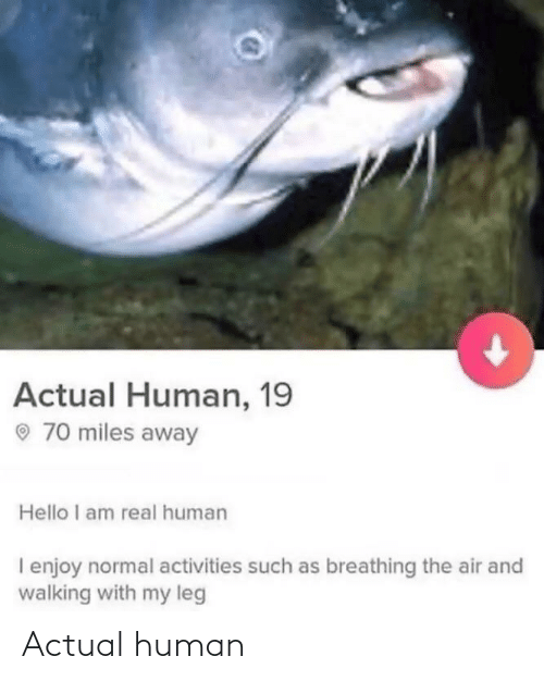 such: Actual Human, 19  O 70 miles away  Hello I am real human  I enjoy normal activities such as breathing the air and  walking with my leg Actual human