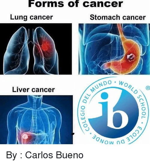 lunging: Forms of Cancer  Lung cancer  Stomach cancer  NDO W  Liver cancer  Wow 3 By : Carlos Bueno