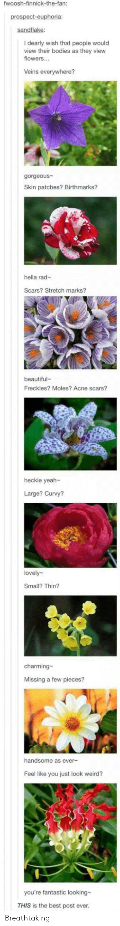 Bodies : fwoosh-finnick-the-fan:  prospect-euphoria:  sandflake:  I dearly wish that people would  view their bodies as they view  flowers...  Veins everywhere?  gorgeous  Skin patches? Birthmarks?  hella rad-  Scars? Stretch marks?  beautiful  Freckles? Moles? Acne scars?  heckie yeah-  Large? Curvy?  lovely  Small? Thin?  charming-  Missing a few pieces?  handsome as ever-  Feel like you just look weird?  you're fantastic looking-  THIS is the best post ever. Breathtaking