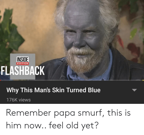 Blue, Dank Memes, and Old: INSIDE  EDITION  FLASHBACK  Why This Man's Skin Turned Blue  176K views Remember papa smurf, this is him now.. feel old yet?