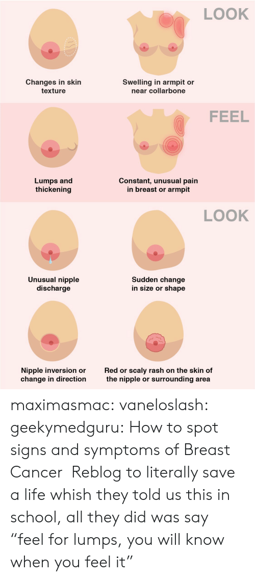 """Breast Cancer: LOOK  Changes in skin  Swelling in armpit or  near collarbone  texture  FEEL  Lumps and  thickening  Constant, unusual pain  in breast or  armpit  LOOK  Unusual nipple  discharge  Sudden change  in size or shape  scaly rash on the skin of  surrounding area  Nipple inversion or  change in direction  Red or  the nipple  or maximasmac: vaneloslash:  geekymedguru: How to spot signs and symptoms of Breast Cancer  Reblog to literally save a life   whish they told us this in school, all they did was say """"feel for lumps, you will know when you feel it"""""""