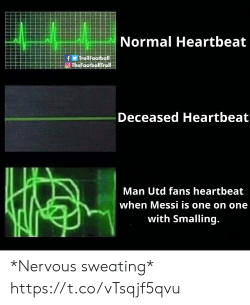 Man Utd Fans: Normal Heartbeat  OTheFoofbo!Troll  Deceased Heartbeat  Man Utd fans heartbeat  when Messi is one on one  with Smalling *Nervous sweating* https://t.co/vTsqjf5qvu