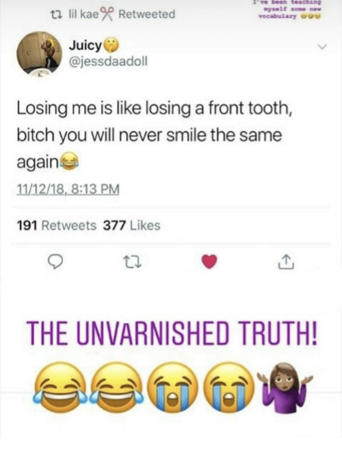 vocabulary: ti lil kae Retweeted  nyself some w  vocabulary u  Juicy  @jessdaadoll  Losing me is like losing a front tooth,  bitch you will never smile the same  again  11/12/18, 8:13 PM  191 Retweets 377 Likes  THE UNVARNISHED TRUTH!