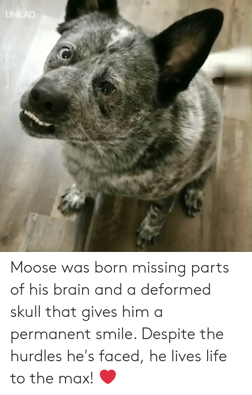 To The Max: UNILAD  MOOSEBOY16 Moose was born missing parts of his brain and a deformed skull that gives him a permanent smile. Despite the hurdles he's faced, he lives life to the max! ❤️