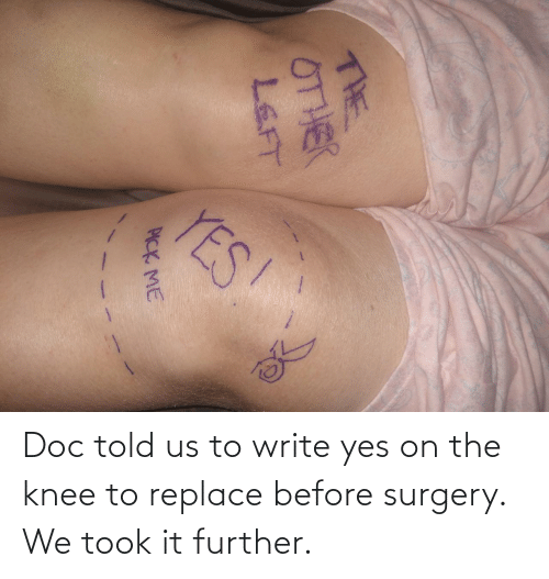 Before: YES!  THE  0THER  LEFT  PICK ME Doc told us to write yes on the knee to replace before surgery. We took it further.